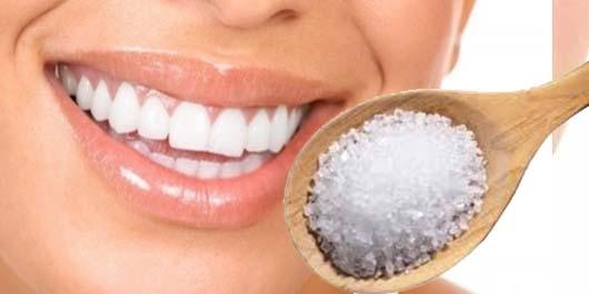 Sararmış Dişlerden Kurtulmanın Yolları 2