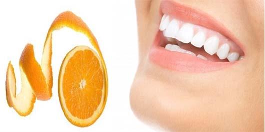 Sararmış Dişlerden Kurtulmanın Yolları 3