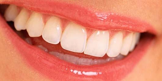 Diş Eti Nasıl Korunur 2