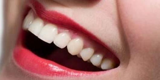 Diş Eti Nasıl Korunur 6