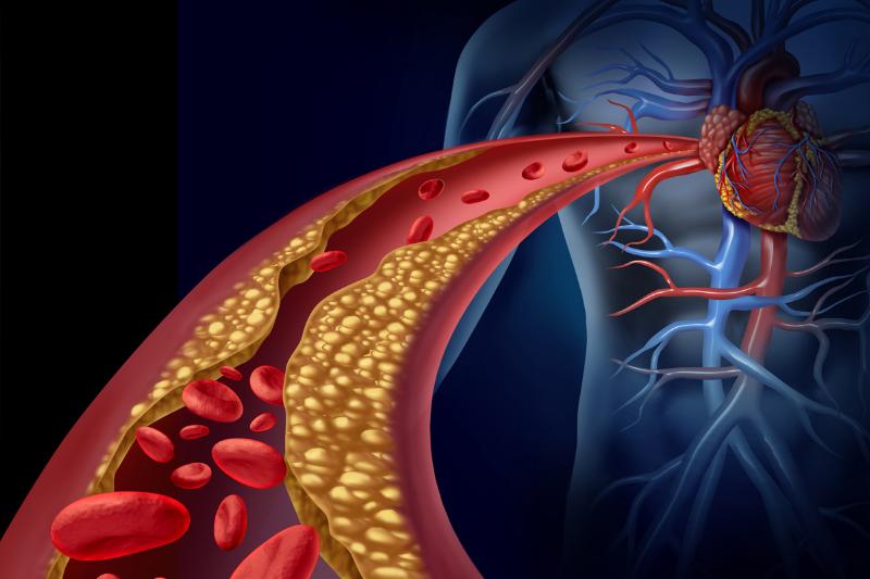 Yüksek kolesterol nasıl düşürülür