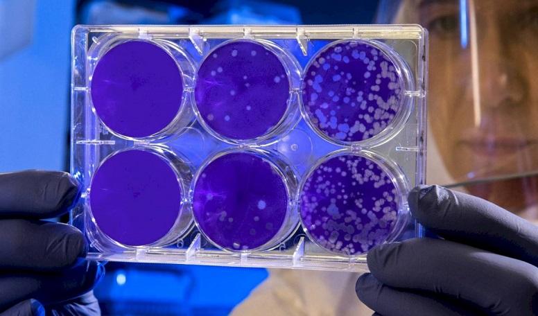 Antikor testi nedir? Koronavirüs'le mücadelede ne kadar etkili ? 1