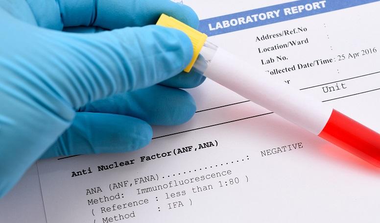 Antikor testi nedir? Koronavirüs'le mücadelede ne kadar etkili ?