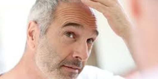 Beyaz Saçlar İçin Bitkisel Çözüm 3